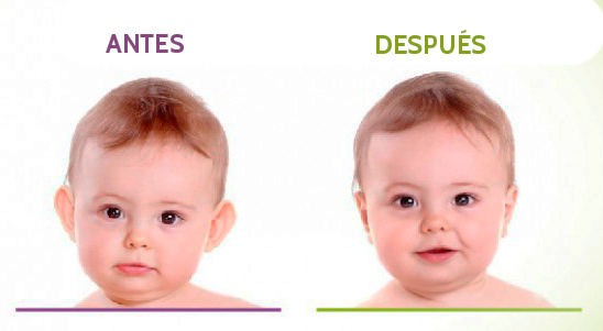otoplastia-en-niños