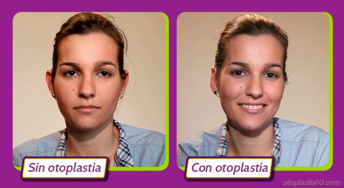 mejores-medicos-para-otoplastia