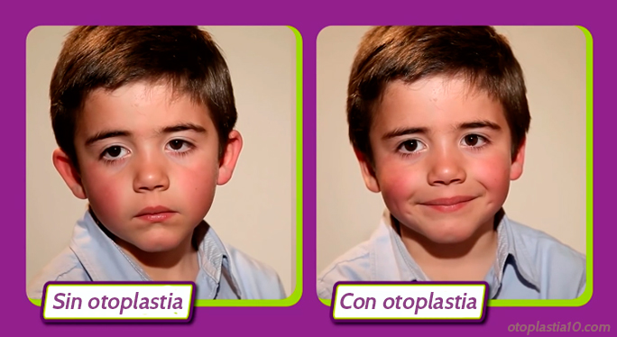 mejores-cirujanos-otoplastia