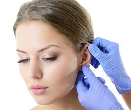 cirugía de orejas de soplillo